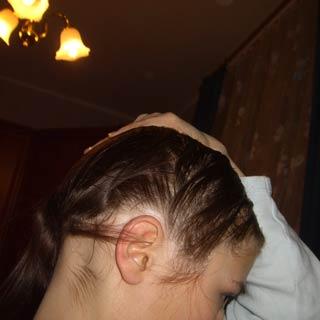 11-почему-сильно-выпадают-волосы-у-женщин-3