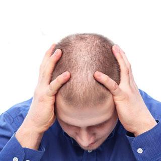 6-выпадают-волосы-2