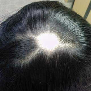 21-у-ребенка-выпадают-волосы-что-делать-3