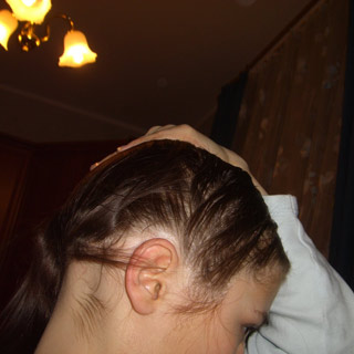 23-андрогенное-выпадение-волос-у-женщин-лечение-2