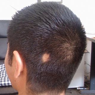 31-выпадение-волос-у-мужчин-в-молодом-возрасте-3