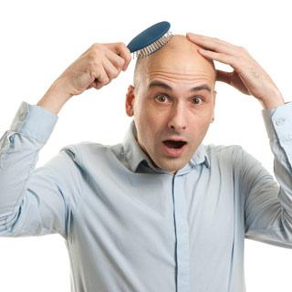 31-выпадение-волос-у-мужчин-в-молодом-возрасте-4