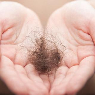 32-выпадения-волос-пятнами-2