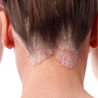 40-лишай-выпадение-волос-3