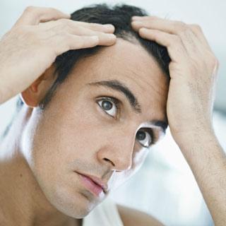 49-почему-выпадают-волосы-у-мужчин-2