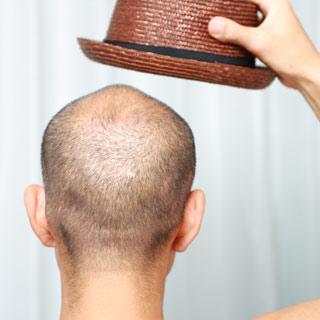 49-почему-выпадают-волосы-у-мужчин-5