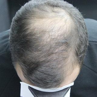 51-причины-выпадения-волос-у-мужчин-5