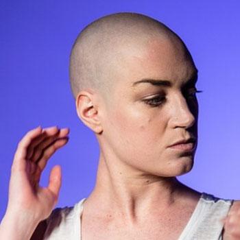 78-выпадение-волос-после-химиотерапии-3