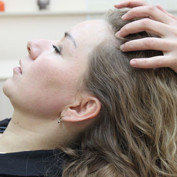 78-выпадение-волос-после-химиотерапии-4