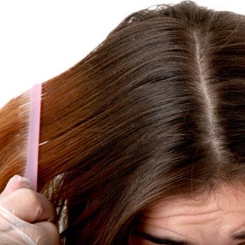 84-лекарство-от-выпадения-волос-у-женщин-2