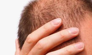 Как связан уровень дигидротестостерона с выпадением волос
