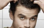 Почему у мужчин молодого возраста выпадают волосы