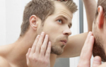 По какой причине выпадают волосы у мужчин
