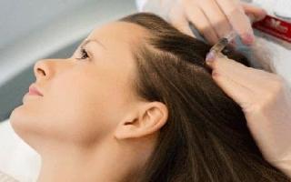 Описание и виды различных уколов в голову от выпадения волос